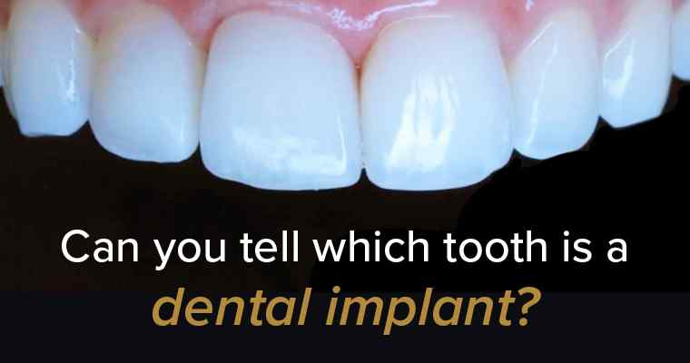 Dental Implants Before and After (Real Patient Story and Photos)