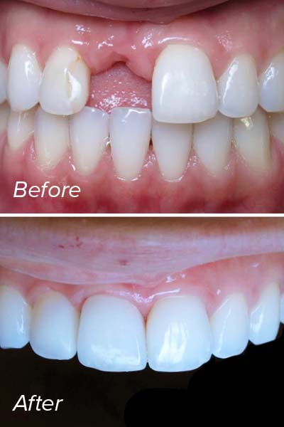 A before and after photo of a dental implant case results.
