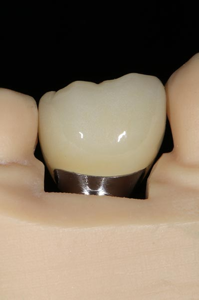 The custom abutment of a dental implant as shown in model jaw.